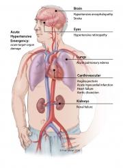 Acute Hypertension